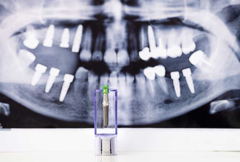 dental implant and an xray picture in the background