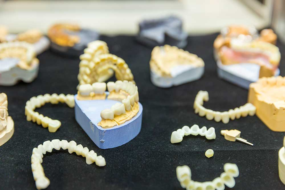 denture treatment dental implants
