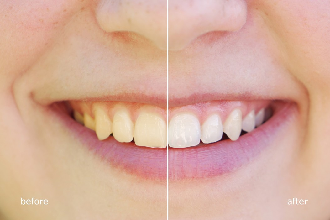 teeth whiting before and after