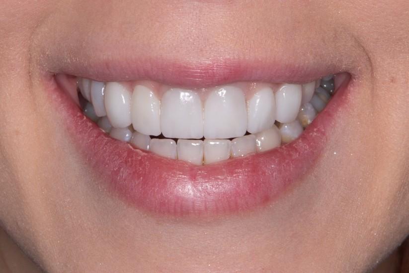 smile with dental veneers